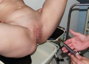 クスコ式膣鏡を膣に挿入するところの画像