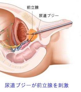 尿道ブジーを挿入している図