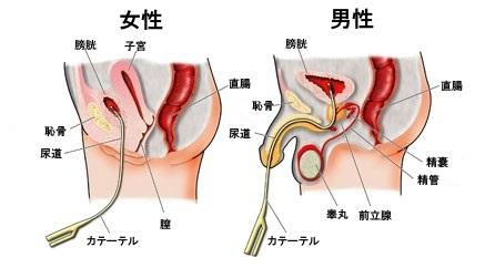 尿道の男女間の差の説明図