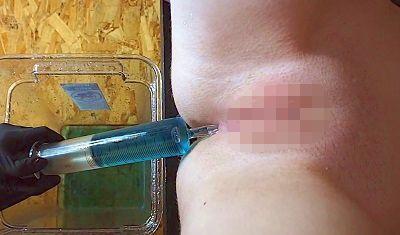 ガラス製注射器型浣腸器で浣腸されている女性