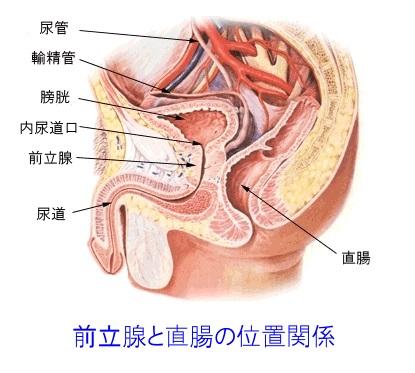 前立腺と直腸の位置関係図